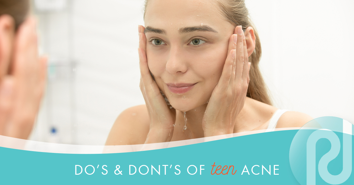 Teen Acne Do's and Don'ts