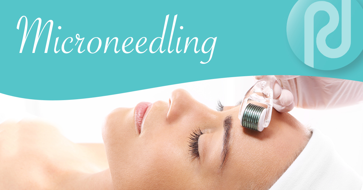 Could Microneedling be your favorite cosmetic treatment?