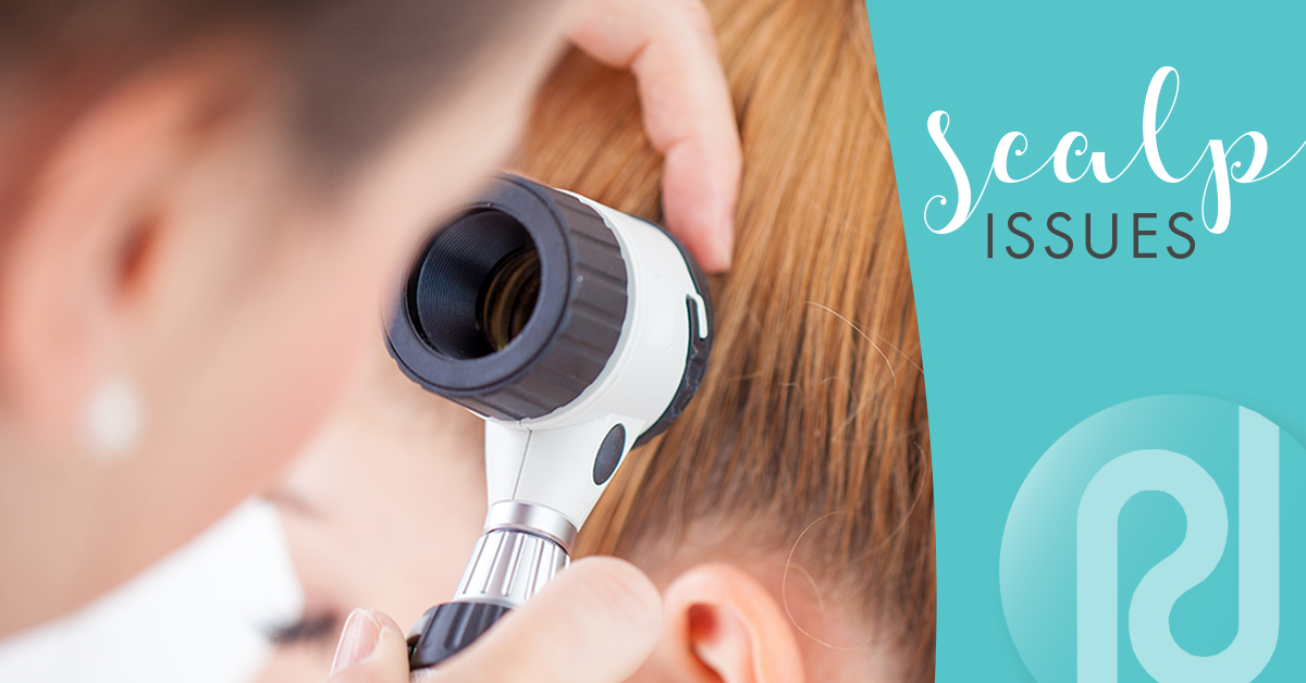 Common scalp issues and how to treat them