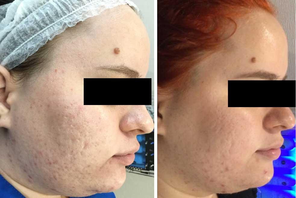 Acne Scars and Microneedling