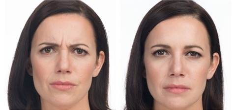 Botox as a Preventative (Updated)